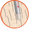 Extraction of Hair Follicles icon