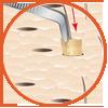 Transplantation icon