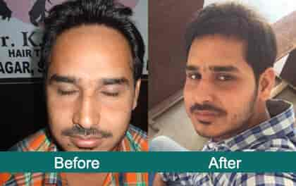 check our 2016 hair transplant results